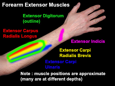 forearm extensor muscle overuse and rsi ergomatters rsi blog rh ergomatters co uk Swollen Elbow with Fluid Swollen Vein in Forearm