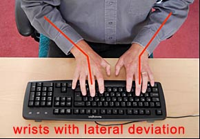 bad wrist angle keyboard RSI